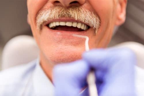 Implants London Dentist