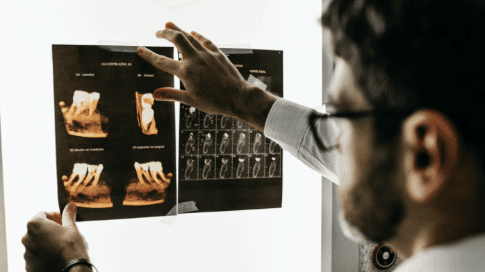 Dental x ray scan